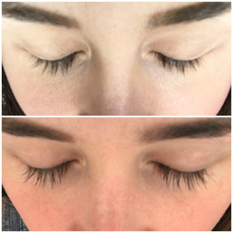 Rodan And Fields Vs Clinique Which Brand Has The Best Eye Cream